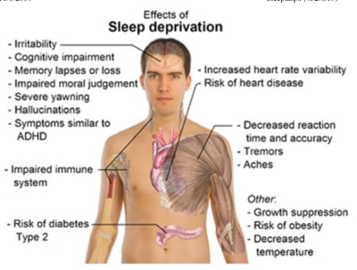 sleep deprivation